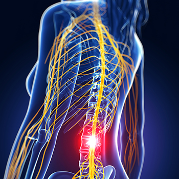 Back in Motion – Finest Health Therapy » Physiotherapie ...